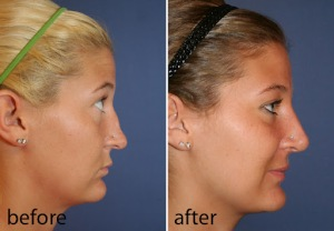 rhinoplasty,hump removal, nasal tip reduction, nose job