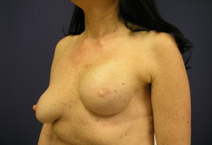 breast reconstruction, reconstruction revision, breast scarring, breast asymmetry, breast reconstruction before and after photographs, breast lift, breast implants, breast scarring,