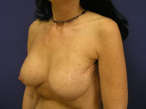 breast reconstruction, breast reconstruction photographs, breast reconstruction revision, breast revision, breast revision, breast asymmetry