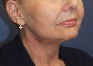 face-lift, face-lift photographs, cheek lift photographs, Neck lift photographs, neck tightening