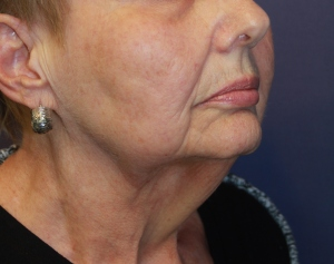 mini facelift, surgical facelift, laser facelift, facelift before and after, facelift photographs, neck lift, facelift cost, neck tightening,
