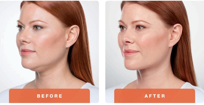 Double Chin…None SurgicalRemoval