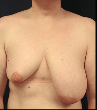 breast asymmetry, uneven breast, breast lift wisconsin, breast augmentation, boob job, uneven breast eau claire, wisconsin, breast implants, breast lift photographs, breast reduction