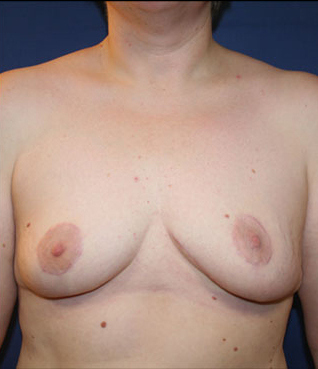 breast lift, uneven breasts, breast reduction, breast surgeon wisconsin, breast surgeon eau claire, breast lift photogrqaphs