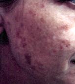 irregular pigmentation, BBL, pulsed dye laser, younger skin, dark skin spots, removal of dark skin spots, photographs irregular pigmentaton
